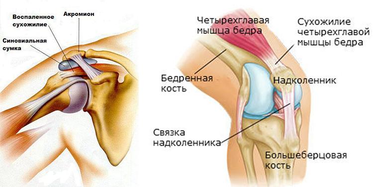 Тренировка связок плечевого сустава боли суставные их виды