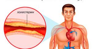 Холестерин на стенках сосудоы