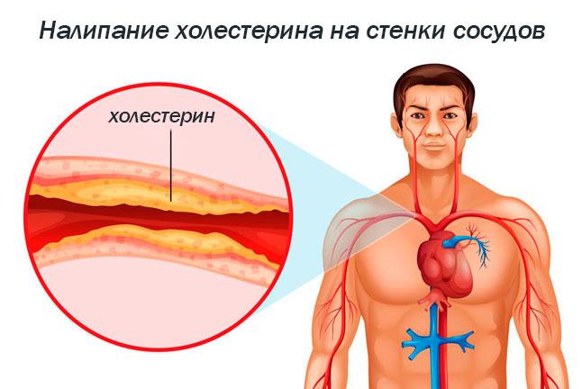 холестерин очень низкой плотности повышен