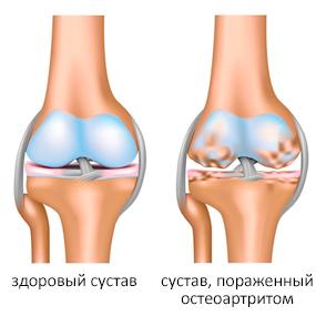 Боль в коленном суставе причины симптомы лечение