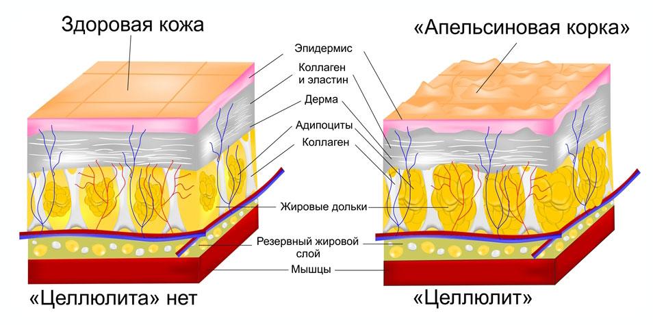 Строение верхнего слоя дермы у человека с целлюлитом и без него